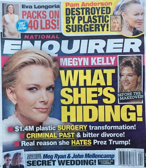Megyn Kelly Plastic Surgery