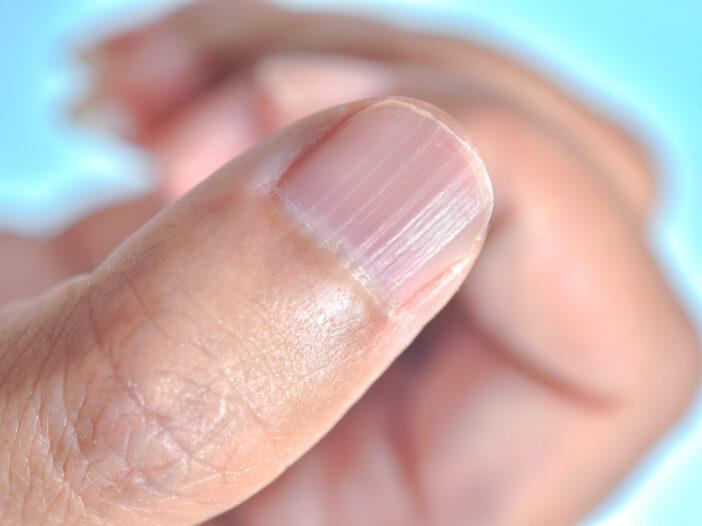 Close-up of a thumb nail with longitudinal ridging.