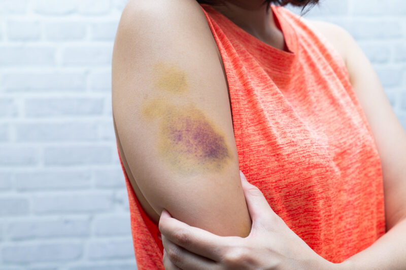 Image of bruise on woman's arm