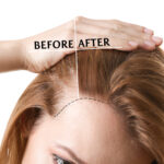 Before and after photo showing a woman with thinning hair and fuller hair.